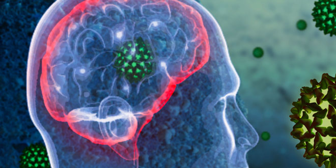 reizdarmsyndrom rückenschmerzen